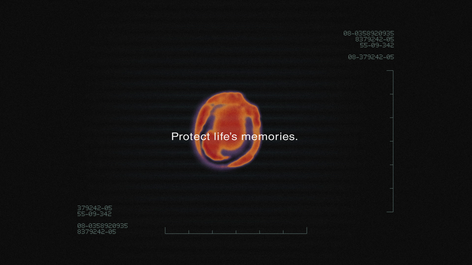 alzheimers_brainscan_image05